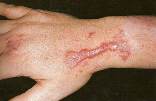Лечение рубцов в Махачкале