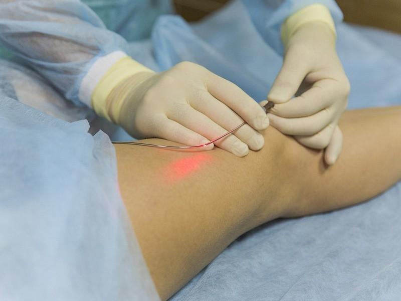 Лечение варикозного расширения вен в Махачкале