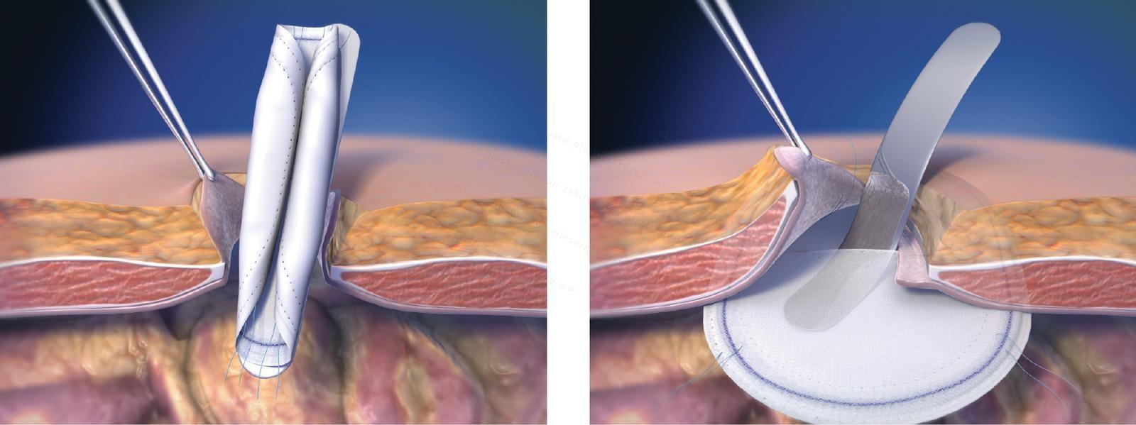 Способ герниопластики сетчатым имплантатом вентральных грыж